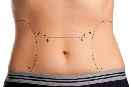 abdominoplastia_doutor_andre_ahmed_cirurgia_plastica02