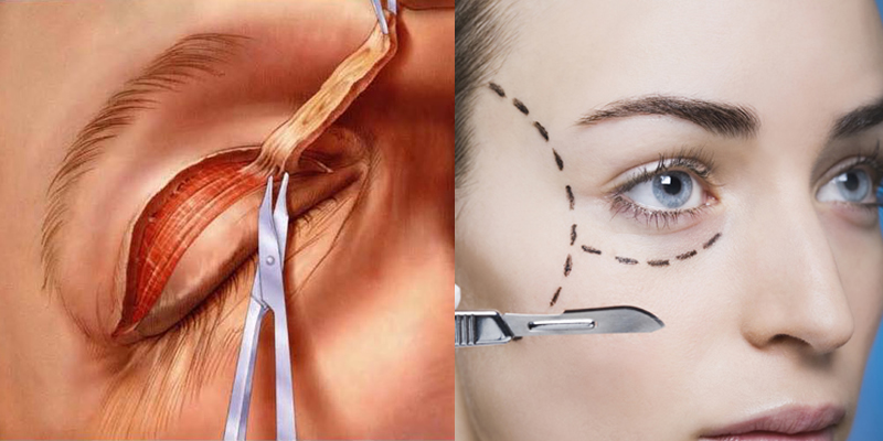blefaroplastia_doutor_andre_ahmed_cirurgia_plastica_02